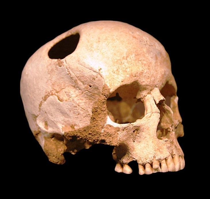Cráneo trepanado de una niña de la época neolítica (3500 a. C.); la paciente sobrevivió. Museo de Historia Natural de Lausana, Suiza. (CC BY SA 2.0)