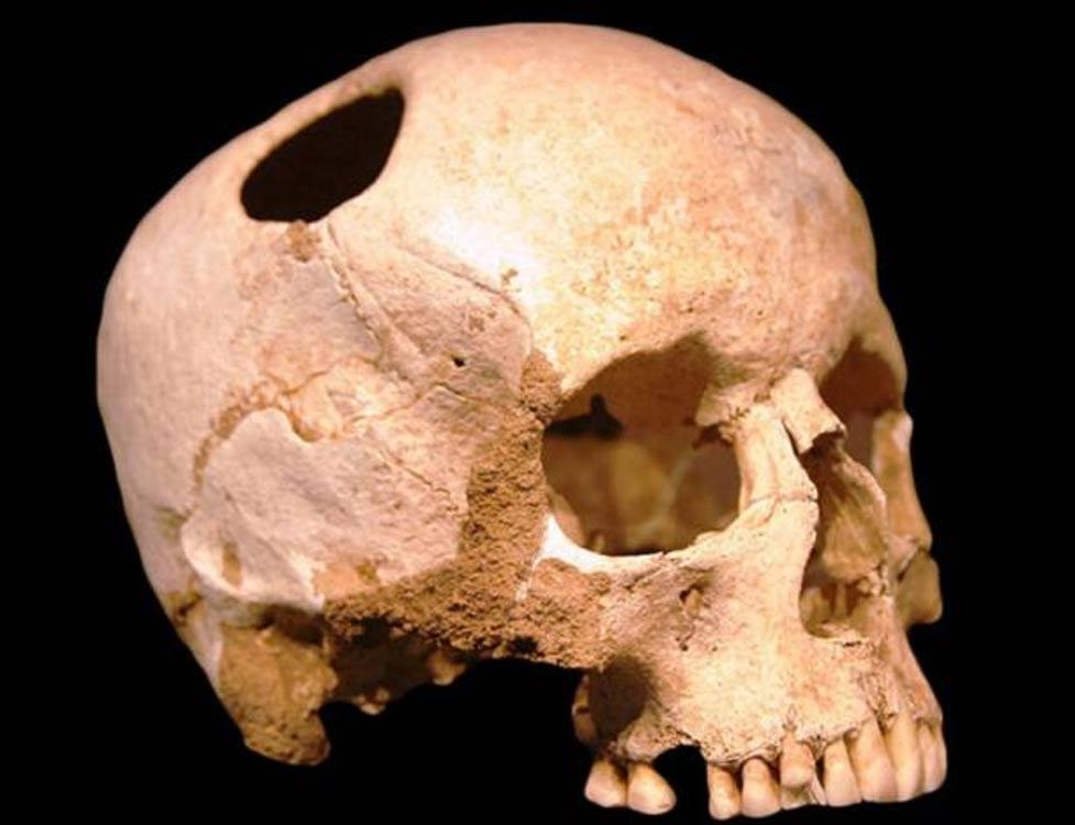 El cráneo trepanado de un hombre de la época sajona o medieval hallado en Hampshire.(Foto: Hampshire Archaeology)