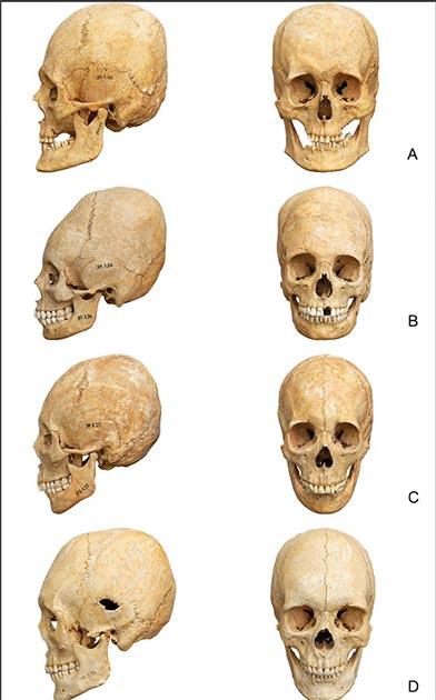 Una serie de cráneos deformados utilizados en el estudio. (PLOS ONE)