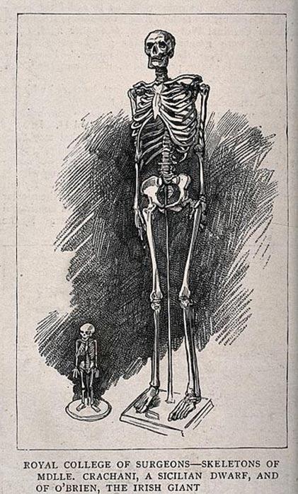 Dibujo comparativo de los esqueletos de un gigante (O'Brien) y una enana (Crachani), expuesto en el Real Colegio de Cirujanos de Londres. (Wikimedia Commons)