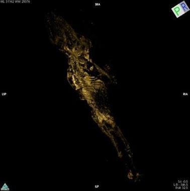 Las manos y los pies del feto se hicieron claramente visibles gracias a los microescáneres realizados mediante tomografía computadorizada. (Fitzwilliam Museum, Cambridge)