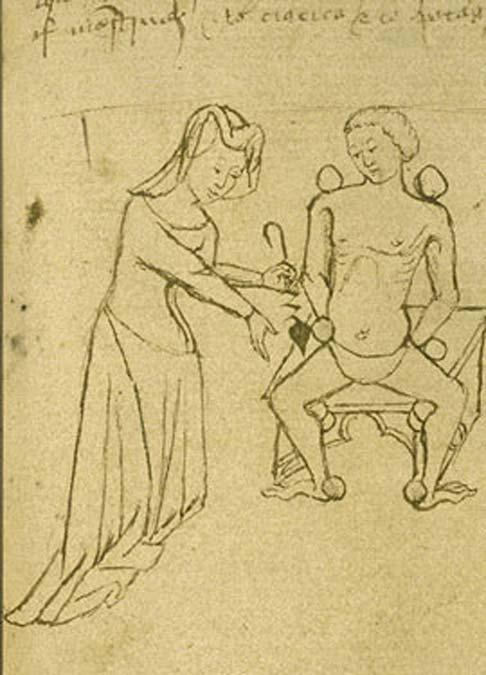 Doctora en proceso de sangría. 1400-1425 (de un manuscrito en inglés de principios del siglo XV, The British Library). (Dominio público)