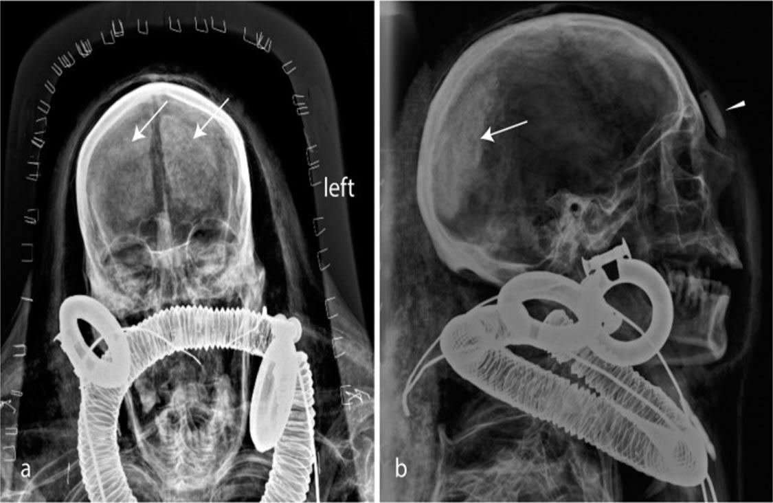 portada: la cabeza de Kha a través de los rayos X (PLOS One)