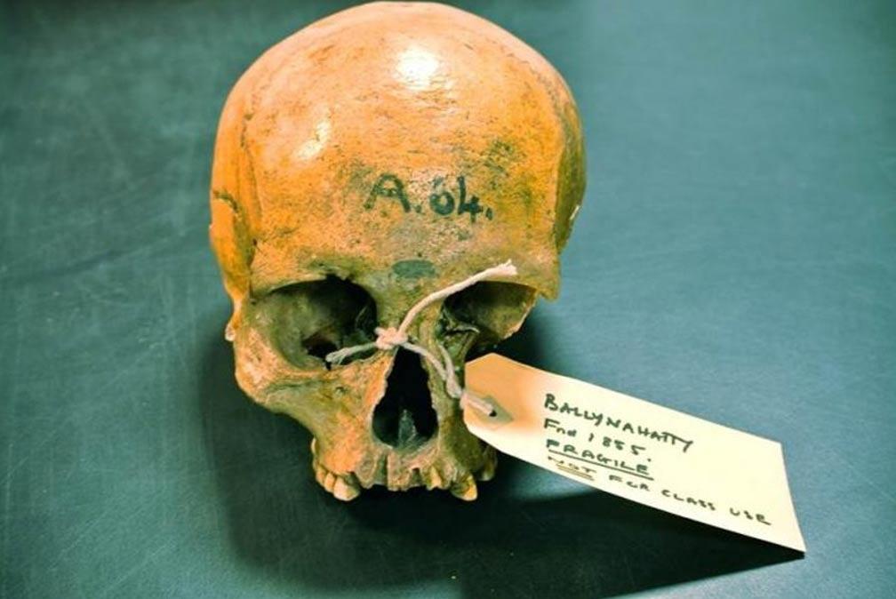 Cráneo de una mujer del Neolítico hallado en unas excavaciones realizadas en el año 1855 en Ballynahatty, Irlanda del Norte. Fotografía: Daniel Bradley