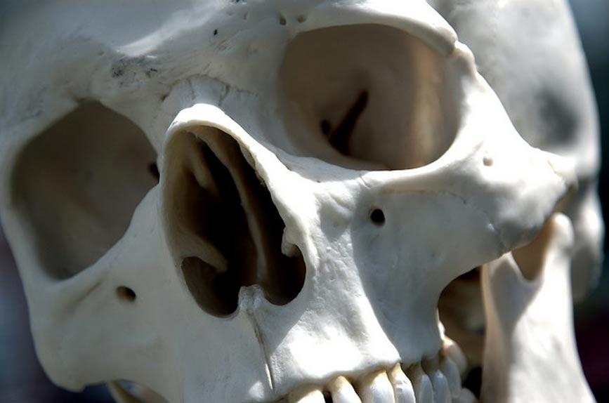 Portada-Cráneo humano. Imagen meramente representativa. (Steve Snodgrass/CC BY 2.0)