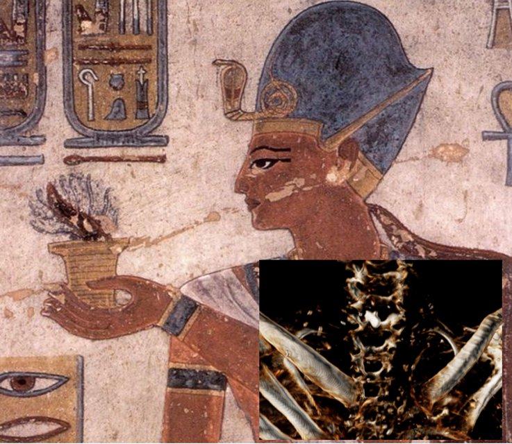 Portada-Ramsés III ofrece incienso, pintura mural de la tumba KV11. (Public Domain) Detalle: Imagen de tomografía computadorizada en la que se observa la herida en el cuello de Ramsés III infligida por una hoja afilada, así como el amuleto colocado en su interior para ayudar a su curación. (Sahar Saleem)