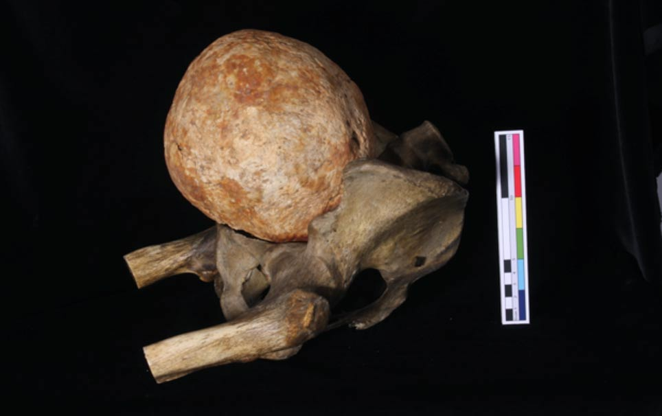 Portada-El útero calcificado descubierto sobre el hueso pélvico de un esqueleto. Foto cortesía de G. Cole, C. Rando, L. Sibun y T. Waldron, del Instituto de Arqueología del University College de Londres.