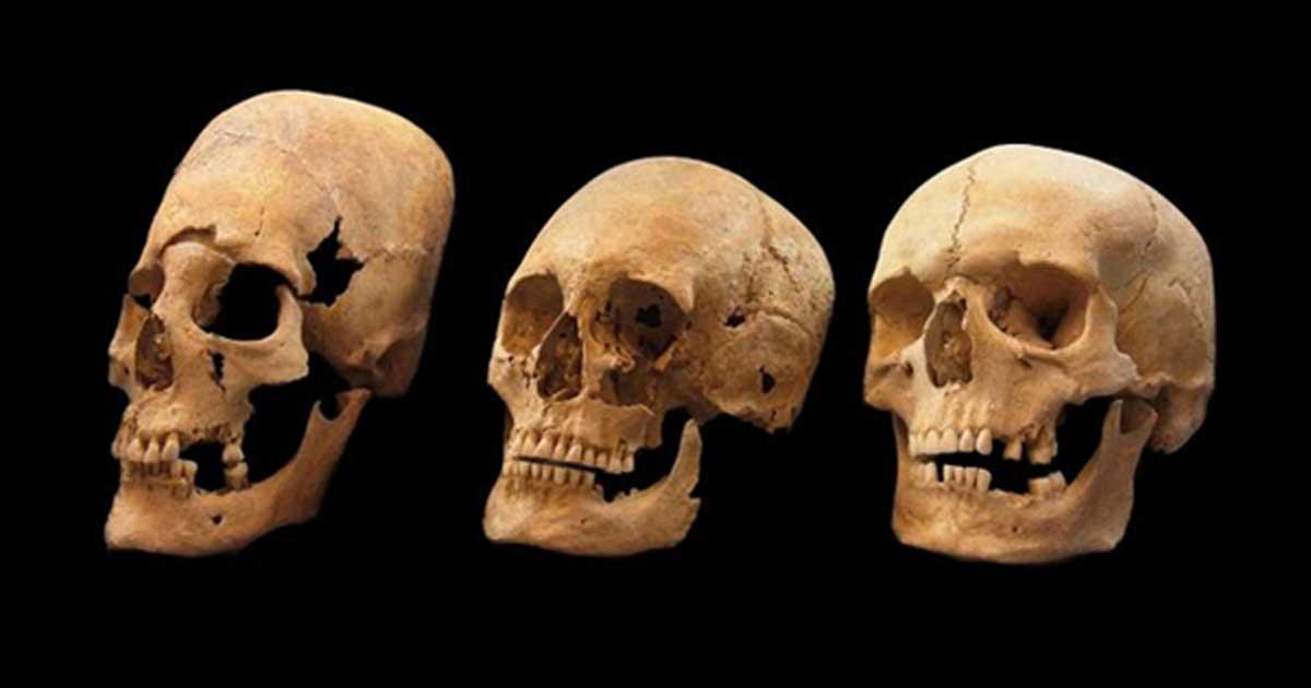 Portada - Cráneos bávaros. Los de la izquierda y el centro muestran signos de deformación; el de la derecha no ha sido deformado. Fuente: Colección Arqueológica del Estado Bávaro