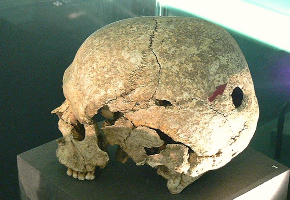 Portada - Cráneo humano con trepanación en su zona posterior. Museo Céltico de Hallein (Salzburgo). ( CC BY SA 3.0)