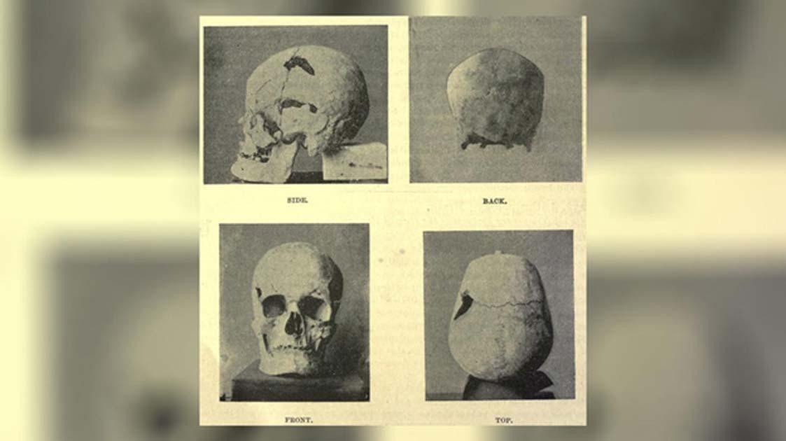 Portada - Cráneo del faraón egipcio Sa-Nakht, quien probablemente sufriera gigantismo (Dominio público)
