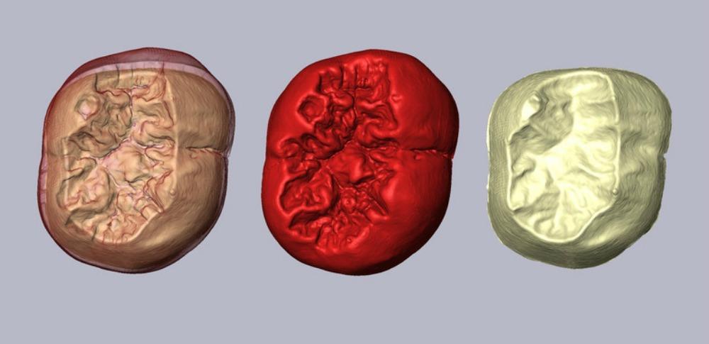 Portada-Imagen digital obtenida mediante microtomografía axial computadorizada de algunos de los molares inferiores objeto del reciente estudio.