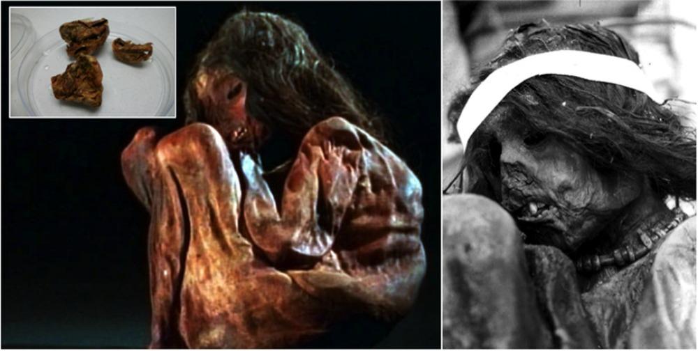 Portada-Fotos de la momia del niño inca sacrificado en un ritual de Capacocha. Arriba a la izquierda, detalle del pulmón de la momia diseccionado. Para la extracción de su ADN se utilizó una pequeña muestra de 350 miligramos. (Fotografía: Nature-Universidad de Cuyo)