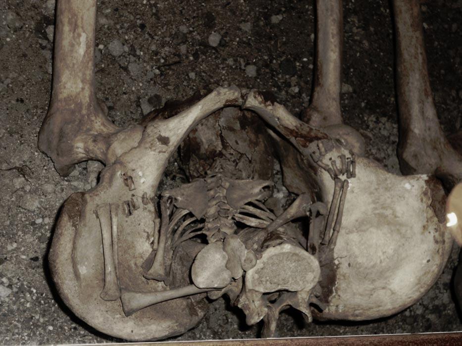 Portada-Posible caso de 'parto en un ataúd'. (Bones Don't Lie)