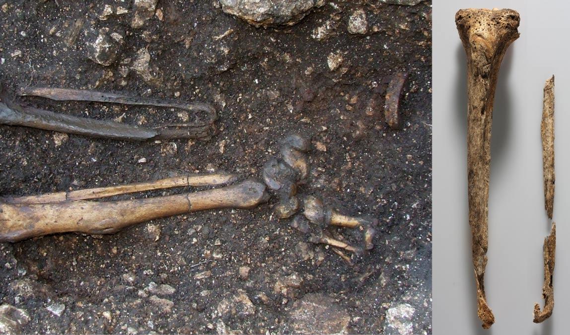 Portada-El pie izquierdo de este caballero austríaco fue amputado, como se puede observar en esta fotografía. (Cortesía del Instituto Austríaco de Arqueología)