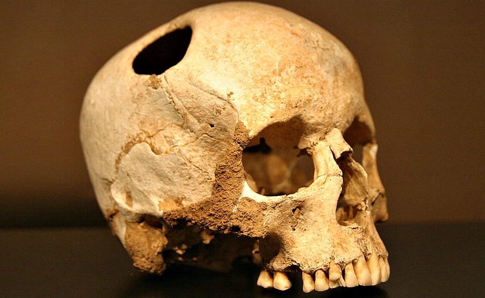 Portada - Cráneo de mujer joven trepanado con sílex, Neolítico (3500 a. C.); la cicatrización de los huesos indica que la paciente sobrevivió a la operación. (Rama/CC BY-SA 2.0)