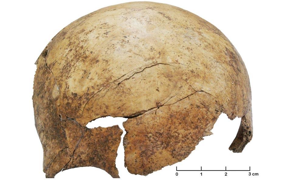 Portada-profundas lesiones craneales en el frontal de la calavera de un niño prehistórico de unos 8 años.Foto:Christian Meyer