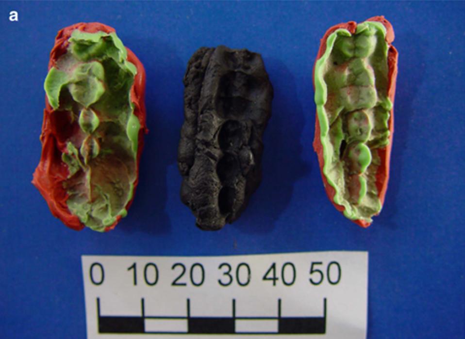 Una de las gomas de mascar que contiene el ADN escandinavo más antiguo de Huseby Klev con dos moldes de plastelina para cada lado. FuenteNatalija Kashuba et al / Nature