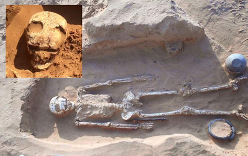Entierro número 12 en Bogomolny, guerrero con evidencia de cirugía cerebral mediante trepanación en el cráneo. Inserción, primer plano del cráneo trepanned