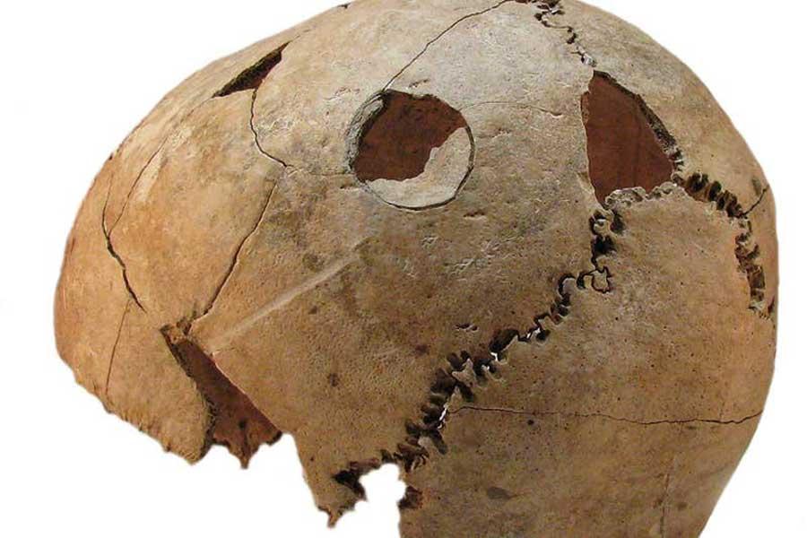 masacre croata, Potočani, Croacia, fosa común, datación por radiocarbono, análisis de ADN, Anatolia, Balcanes, cultura Lasinga, Edad del Cobre, cultura agrícola, escasez de recursos
