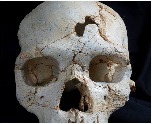 Vista frontal del Cráneo 17 mostrando la posición de los traumatismos T1 (inferior) y T2 (superior).