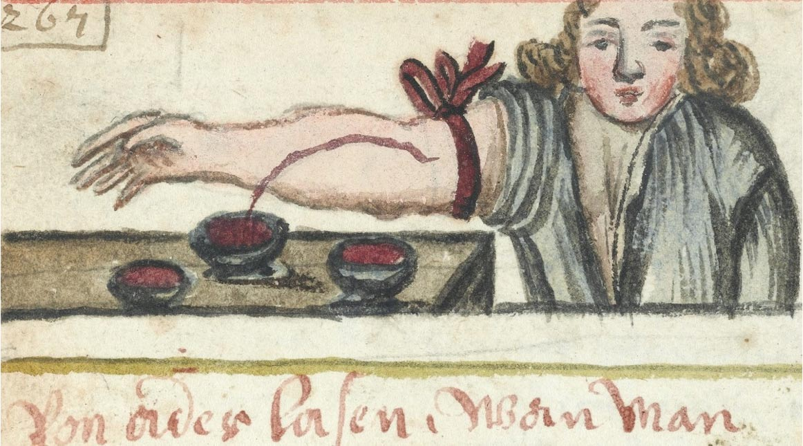 La sangría fue un tratamiento para la infección en el pasado. Wellcome Library, Londres, CC.