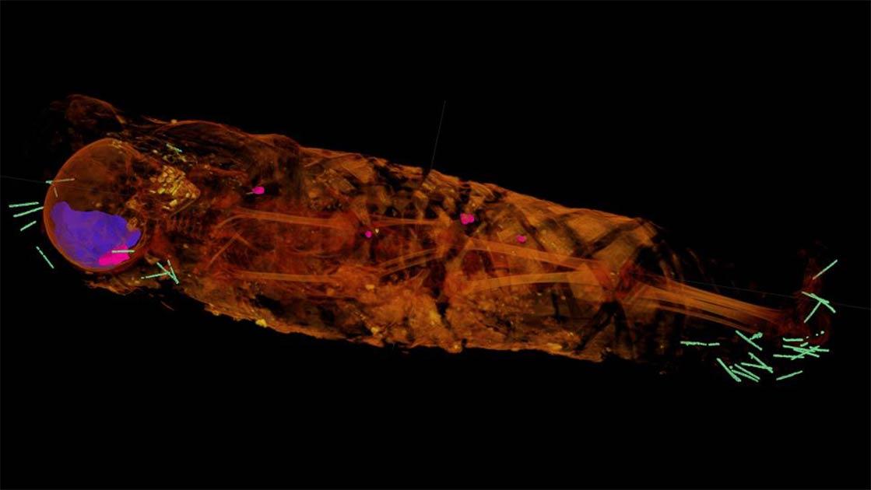 La imagen de tomografía computarizada de la momia de la niña