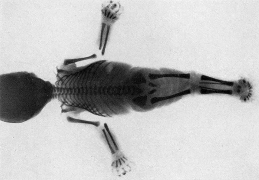 : ¿Podría ser que las sirenas, los míticos espíritus del agua, en realidad se inspiraron en una condición médica de la vida real llamada sirenomelia?