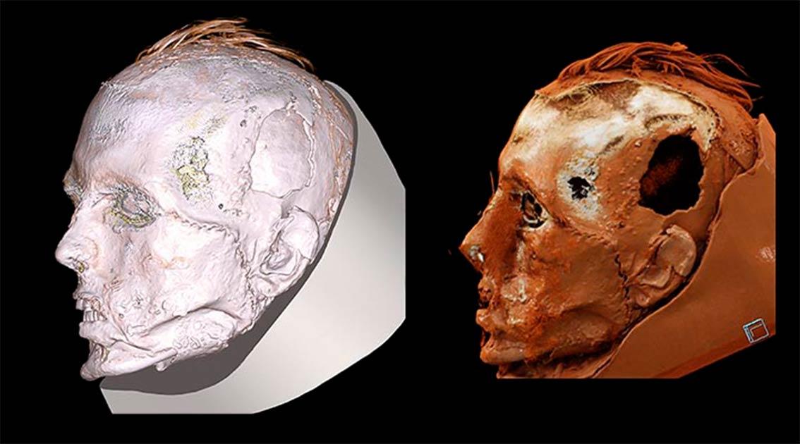 Una nueva tomografía computarizada de la máscara de la muerte Tashtyk ha descubierto la cara del antiguo hombre Tashtyk, revelando que tenía una cicatriz en la cara por una herida cosida después de su muerte. Fuente: © Museo Estatal del Hermitage / The Siberian Times