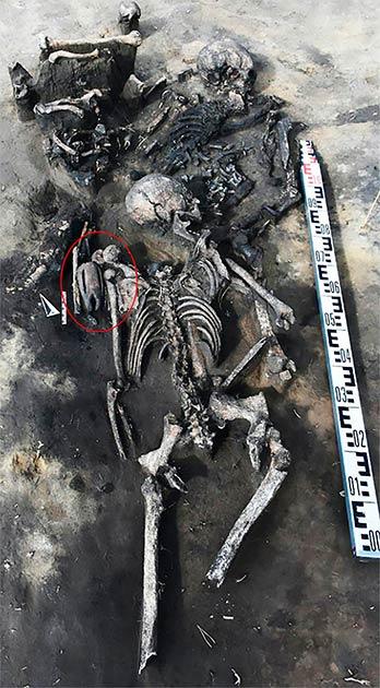 La figura enmascarada (en un círculo) se encontró en el hombro de una mujer que fue enterrada en una fosa común descubierta en Siberia occidental. (Instituto de Arqueología y Etnografía de Novosibirsk / Siberian Times)
