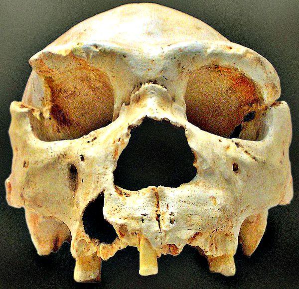 Cráneo número 5 de la Sima de los Huesos, tal como apareció en la campaña de 1992. En campañas posteriores se exhumó su mandíbula. (Wikimedia Commons)