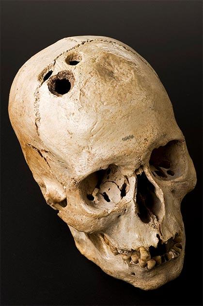 Aunque este cráneo muestra cuatro agujeros separados hechos por el antiguo proceso quirúrgico de la trepanación, claramente habían comenzado a sanar. Esto sugiere que, aunque es altamente peligroso, el procedimiento no fue de ninguna manera fatal. Este cráneo fue excavado en un sitio cerca de Jericó en 1958. (Wellcome Images / CC BY 4.0)