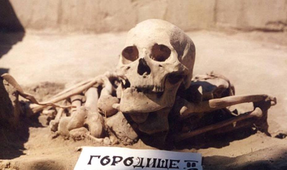 Esqueleto de un hombre Siberiano de la Edad del Bronce datado en 4.500 años, en el que se detectó a finales del 2014 uno de los casos de cáncer más antiguos conocidos. Foto: Angela Lieverse/Universidad de Saskatchewan