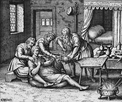 Amputacion-Quirurgica-siglo-XVII.jpg