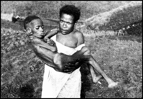 Mujer de la tribu Fore cargando con un niño enfermo de Kuru
