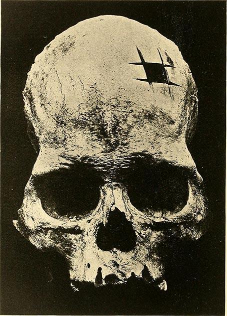 El cráneo original que Ephraim George Squier se mostró con evidencia de trepanación. (Internet Archive Book Images /Dominio Publico)