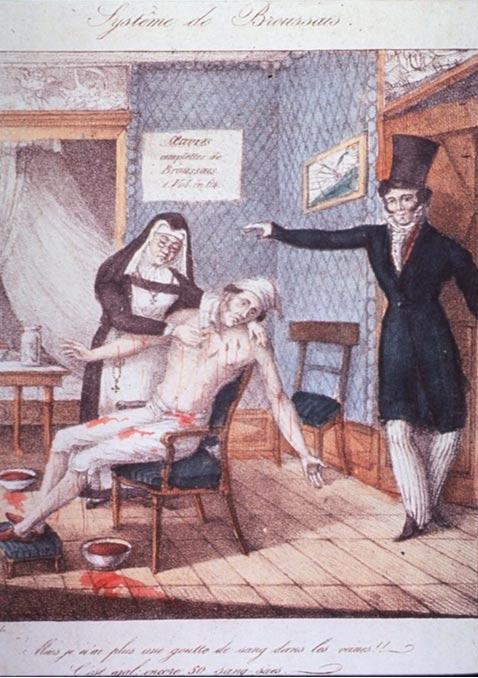 Un hombre sentado en una silla, con los brazos extendidos, chorros de sangre brotando mientras una monja coloca sanguijuelas en su cuerpo. Imágenes de la Historia de la Medicina (NLM)
