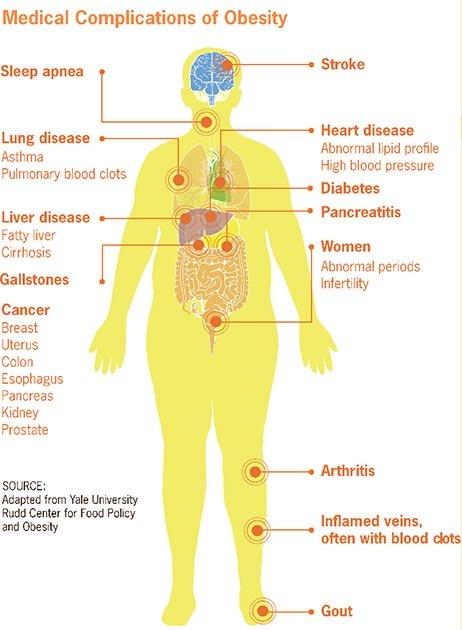 Las complicaciones médicas de la obesidad podrían empeorar el coronavirus en algunas personas. (Smallman12q / Dominio público)