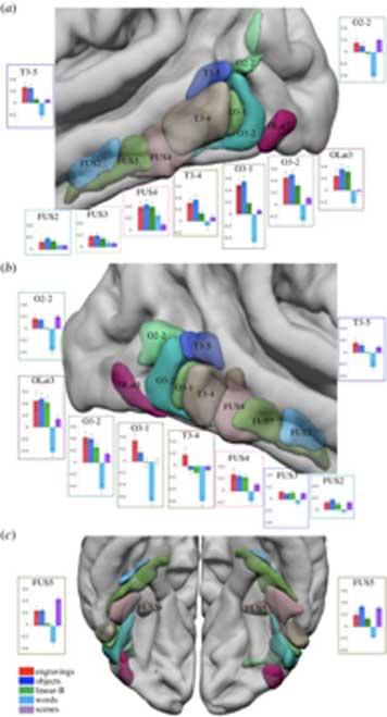 Resonancia magnética que muestra un aumento significativo de la señal BOLD en los grabados menos contraste aleatorio. (Royal Society / Fair Use)