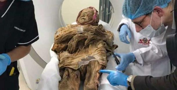 Examinando a la momia de guano. (El tiempo)