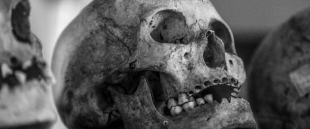 En la ablación, los dientes se quitan a propósito como una forma de identificar al individuo como perteneciente a un grupo específico. (CC0)
