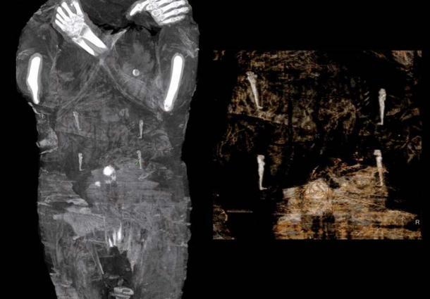 Amuletos, que se cree representan a los cuatro hijos de Horus, acompañan al cuerpo de la momia embarazada. (Proyecto de la Momia de Varsovia)