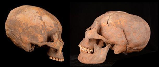 Los cráneos humanos que se han remodelado artificialmente en un sitio en el noreste de China incluyen uno de un hombre de hace unos 12,000 años (dejado en esta imagen compuesta) y otro de una mujer de hace unos 5,000 años (derecha). (Zhang et al., American Journal of Physical Anthropology, 2019)