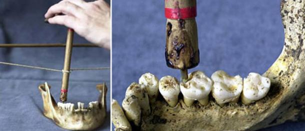 Reconstrucción experimental de un arco y un taladro lítico inclinado utilizado para perforar los molares encontrados en un cementerio neolítico en Mehrgarh, Pakistán.