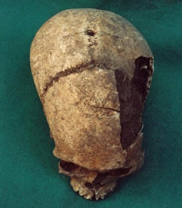 cráneo-con-agujero-artifical.jpg