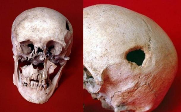 cráneo-trepanado-de-hombre-medieval-o-Sajón.jpg