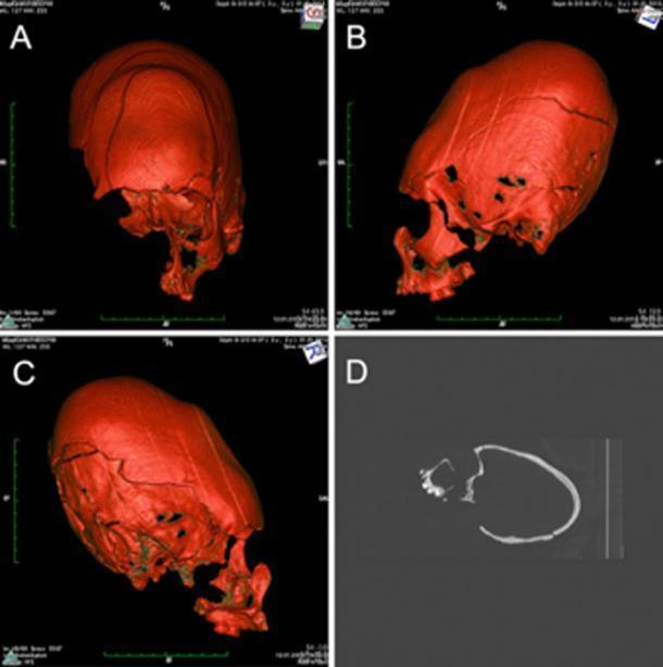 La reconstrucción por TC que muestra uno de los cráneos alargados exhibe un hueso frontal deprimido y fuertemente inclinado, lo que indica un tipo de deformación oblicua tabular. (M Kavka / CC BY 4.0)
