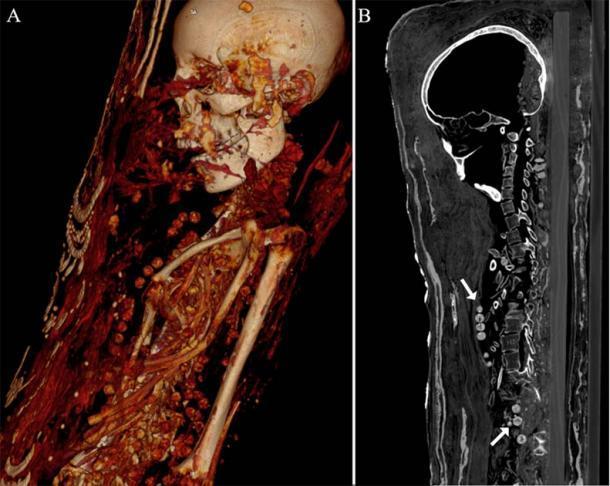 Ambas hembras fueron enterradas con hermosos collares. La tomografía computarizada mostró las cuentas del collar de la mujer alrededor del cuello y el cuerpo. (Zesch S, et al. PLOS One / CC BY 4.0)