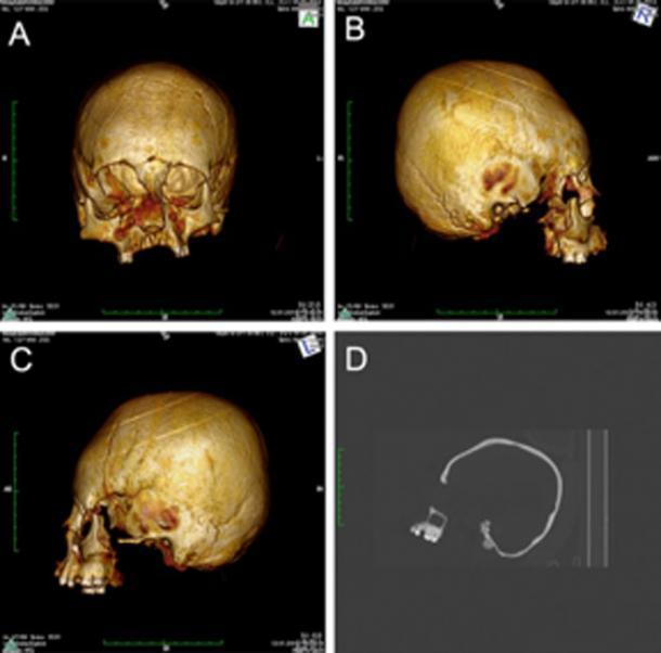 Tomografías computarizadas de la llamada deformación craneal de tipo erecto circular. (M Kavka / CC BY 4.0)