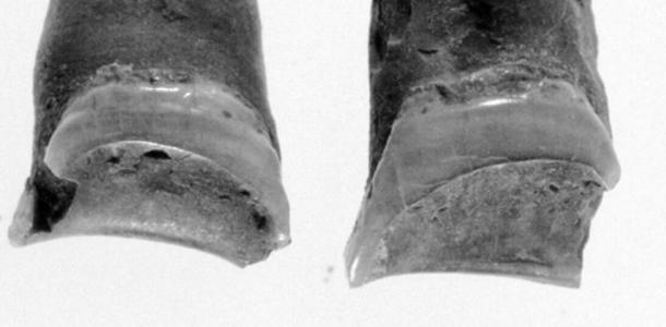 El patrón de desgaste observado en los dientes de la mujer. (Lovell y Palichuk, Bioarqueología de personas marginadas, 2019)