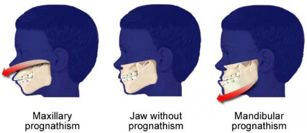La endogamia de los Habsburgo conduce al prognatismo mandibular. (Richardkiwi / Dominio público)